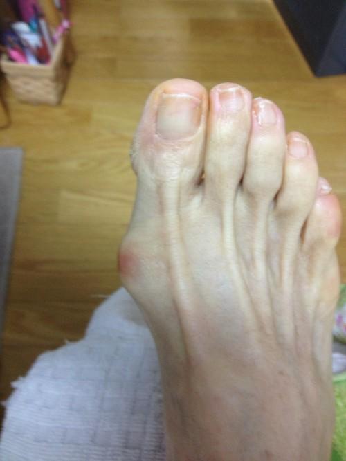 外反母趾治療1.jpg