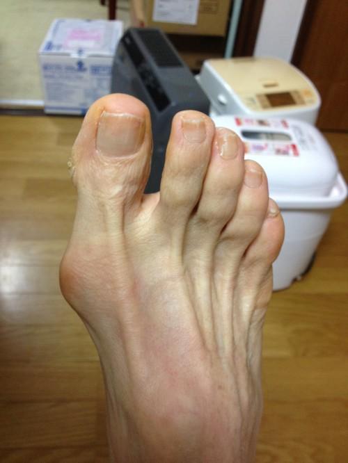 外反母趾治療2.jpg